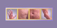 Doença é infecciosa e possui ampla variedade de sinais e sintomas, como manchas brancas ou lesões vermelhas na pele até múltiplas lesões pelo corpo