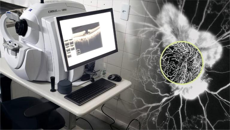 oftalmo2.jpg