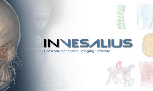 Invesalius